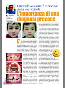 Laterodeviazione funzionale della mandibola1.resized