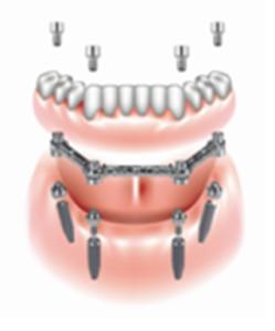 implantologia4