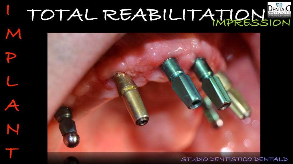 implantologia-caso-clinico2