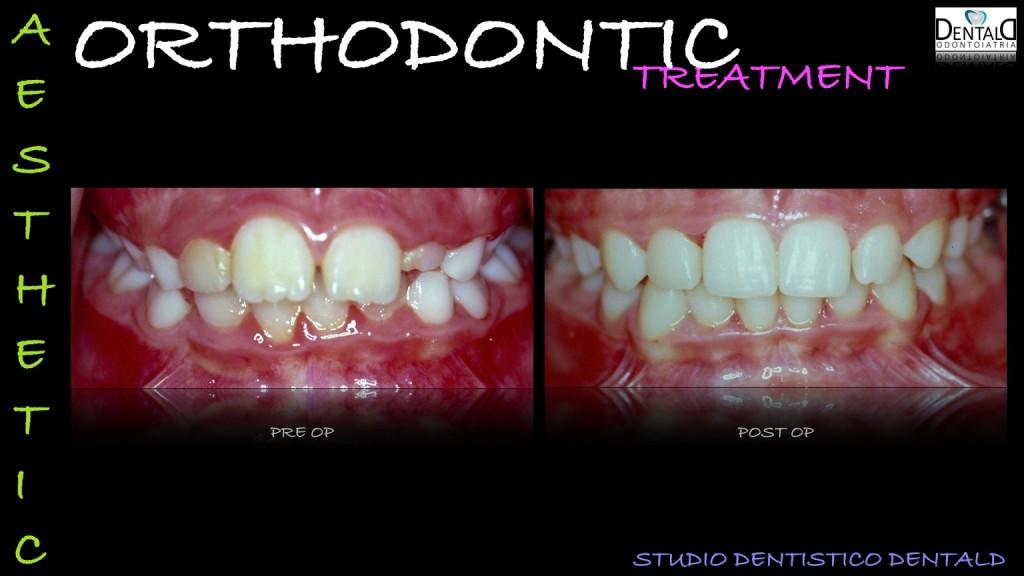 ortodonzia-caso-clinico1