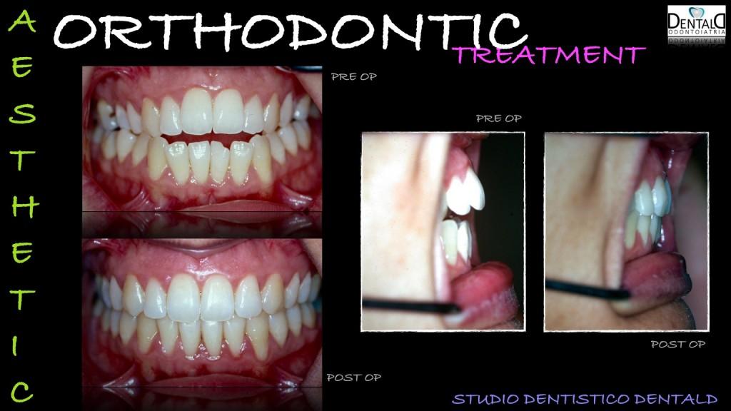 ortodonzia-caso-clinico2