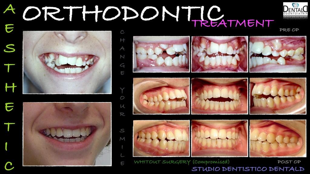 ortodonzia-caso-clinico4