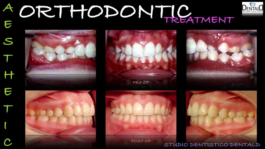 ortodonzia-caso-clinico5