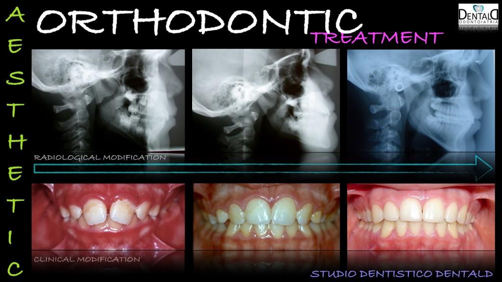 ortodonzia-caso-clinico6
